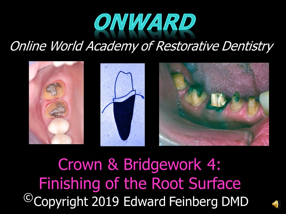 Crown and Bridge 4 - How to Prepare the Root Surface for Full Shoulder Crown and Bridge Preparations